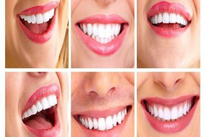Izbeljivanje zuba hidrogen peroksidom
